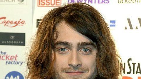 Drasztikusan átváltozott a Harry Potter egykori sztárja – fotó