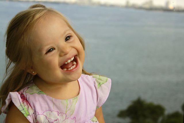 7 csodálatos ember - akiknek Down-szindrómájuk van
