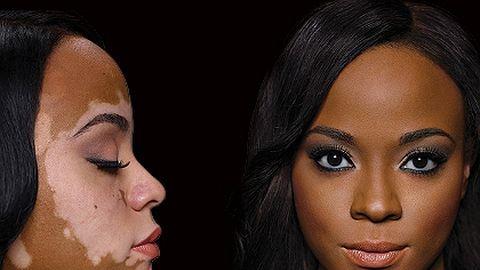 Bőrbeteg lányokkal reklámoznak alapozót