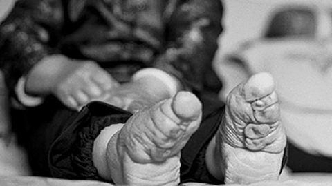 Megrendítő képek: máig is élnek még elkötözött lábú nők