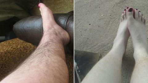 Te bevállalnád? Újra divat a szőrös láb – fotók