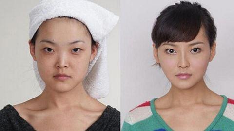 Előtte-utána képek: plasztikai csodák Dél-Koreából