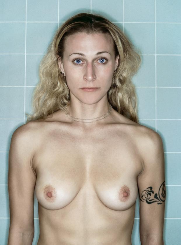 Megrázó fotókat készített magáról egy mellrákos nő