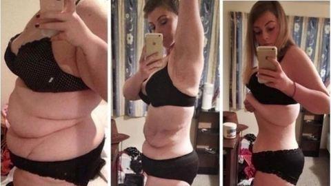 55 kilót fogyott, és megszabadulna csúnyán megnyúlt bőrétől is – fotók