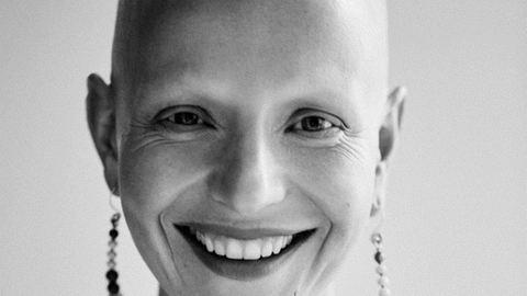 6 nő meséli el, hogyan veszítette el a haját – megható történetek