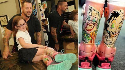 Tetoválóművész dekorálta ki a kislány lábmerevítőit – fotók