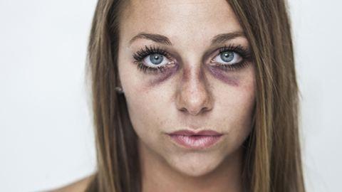 Nyilvánosság elé állt a bántalmazott nő – fotók
