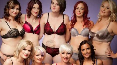 Sztómazsákkal élő nők készítettek szexi naptárat – fotók