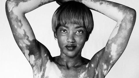 Lásd meg te is a vitiligo szépségét!