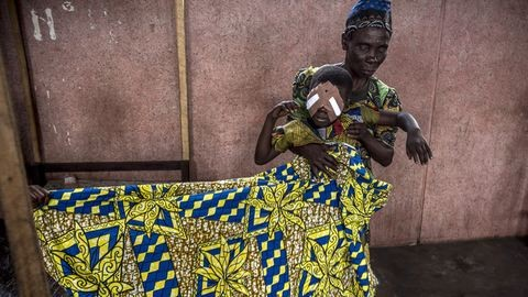Egy szerzetes-szemorvos élete Kongóban – Hajdú D. András képei