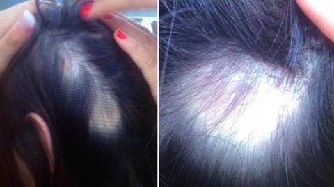 Megkopaszodtak a nők a sztárfodrász hajápolóitól – fotók