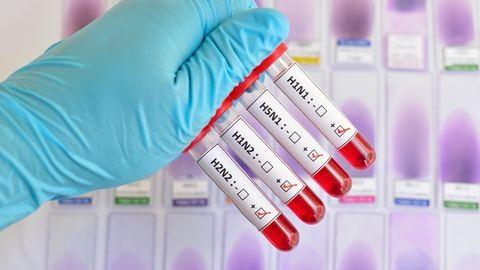 Támad az új típusú H1N1-es influenza
