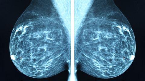 Tapintásról ismeri fel a rákot egy új orvosi kesztyű