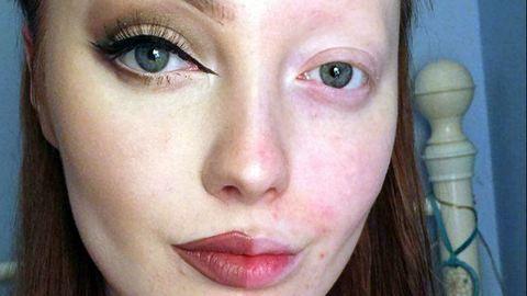 Kegyetlenül megtámadták a smink nélküli fiatal lányt – fotók