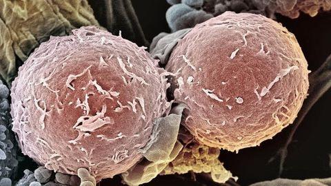 A gyerekkorban leggyakoribb ráktípusok
