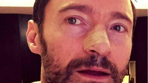 Hugh Jackman rákja ötödszörre is kiújult