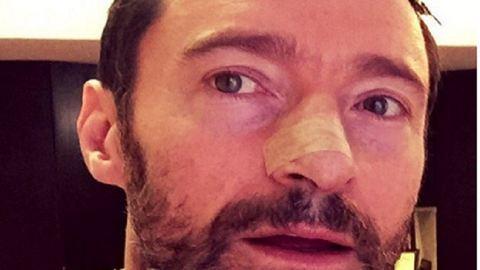 Hugh Jackman a napvédelemre figyelmeztet – az ötödik bőrrákműtétje után!