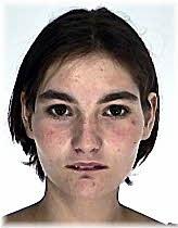 Gyógyszeres kezelés alatt álló fiatal nő tűnt el