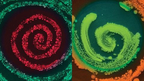 Nézd, ilyen baktériumok laknak a köldöködben! – fotók