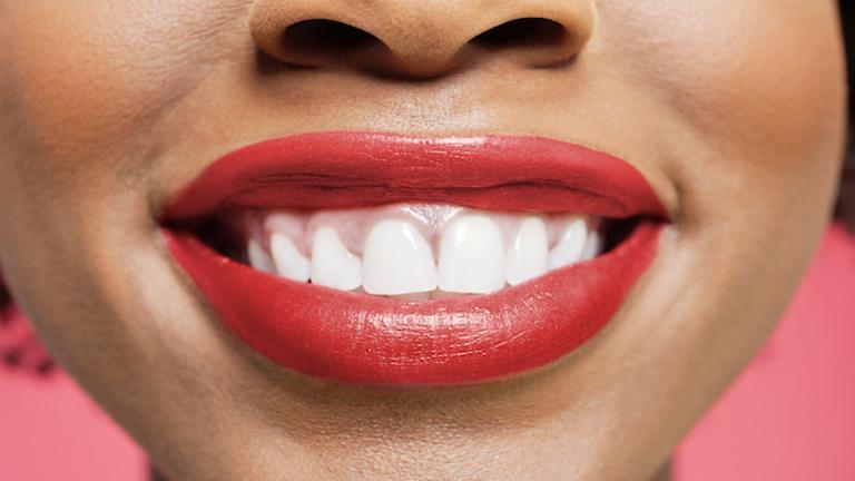 Ezek a szokások rontják a fogaidat