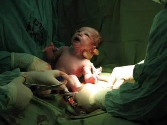 Ilyen a császsármetszés - újabb gyönyörű képek a születésről