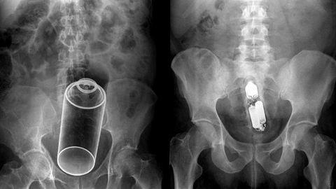 18+: Sokkoló szextárgyak a röntgengép alatt – fotók