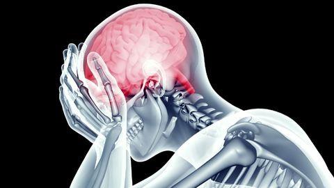 A betegek negyede gyógyul csak fel teljesen a stroke-ból