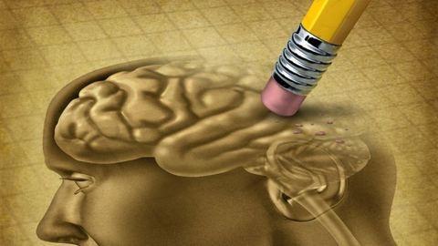 A férfiaknál hamarabb felismerik az Alzheimer-kórt