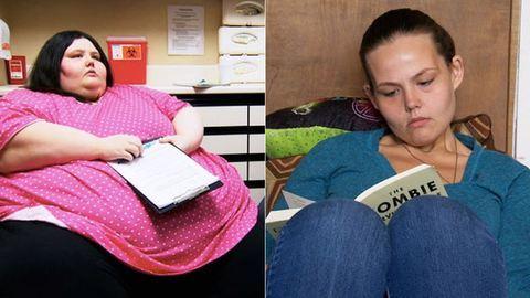 Anorexiás lett a fiatal nő, miután lefogyott 240 kilót