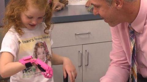 3D nyomtatóval készítettek kezet egy kislánynak