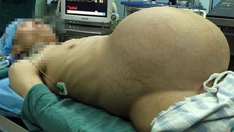 15 kilós tumort távolítottak el egy férfiból