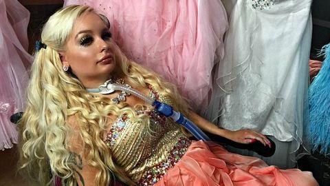 Nyaktól lefelé béna, de Barbie-ként él – fotók
