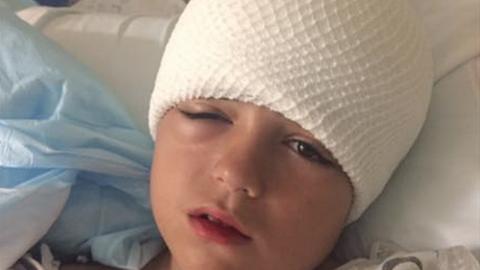 Ez a kisfiú majdnem meghalt két nappal azután, hogy leesett a bicikliről