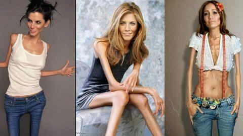 Félelmetes a 40 kilós Jennifer Aniston – nézd meg a csontsovány sztárokat