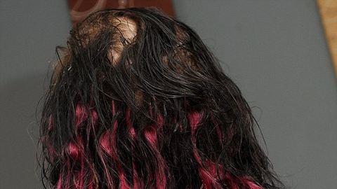 Foltokban megkopaszodott a hajragasztótól egy nő