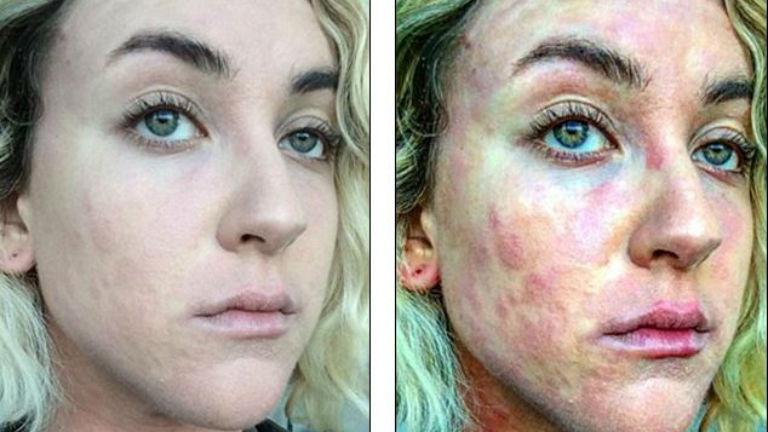 Hősként ünnepli az internet a bőrbeteg nőt, aki megmutatta magát smink nélkül