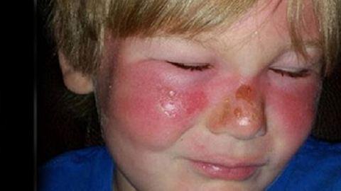50-es naptejjel is súlyosan megégett a kisfiú