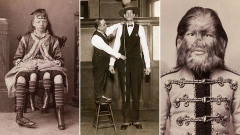A négylábú lány, a kutyaarcú fiú: a freak show főszereplőinek története