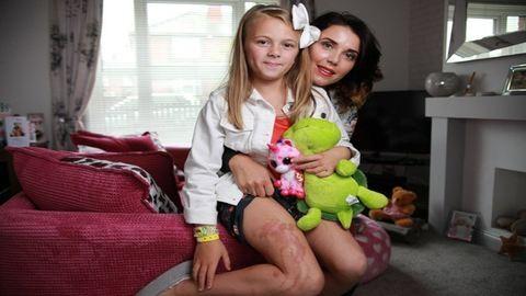 Súlyos égési sérüléseket szerzett a naptejtől a 9 éves kislány