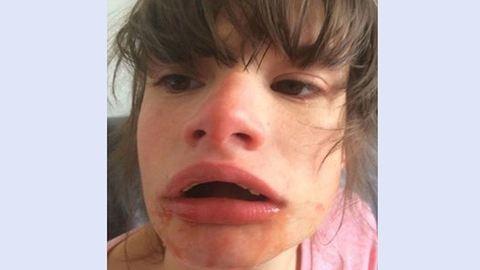 Kiborultak a szülők, miután a fogorvos kihúzta lányuk összes alsó fogát
