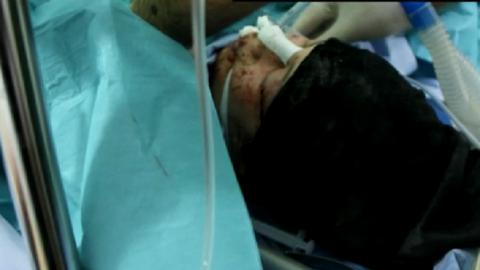 Repesz találta el a várandós kismamát Szíriában