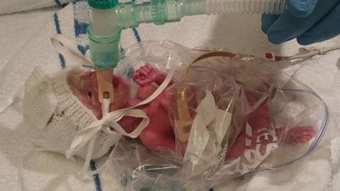Tescós szendvicszacskóval mentették meg a koraszülött kisbabát