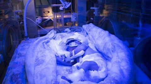 Díjat nyert ez a koraszülött babáról készült fotó