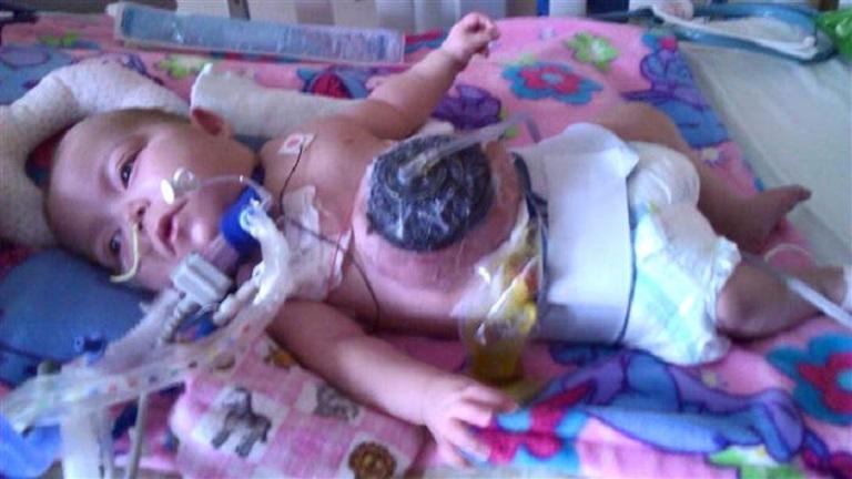 Megható: örökbe fogadta a nővér a koraszülött babát