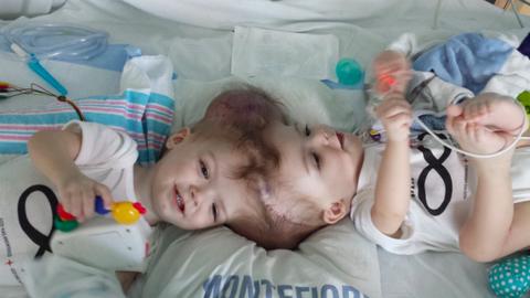 16 órás műtét után választották szét a fejüknél összenőtt sziámi ikreket