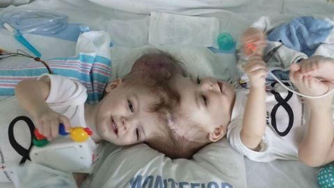 A Facebookon köszönte meg az operációt az amerikai sziámi ikrek anyja
