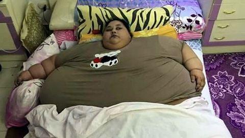 Meghalhat a világ legkövérebb nője