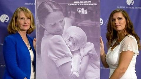 Megégett babán segített a nő, nem felejtették