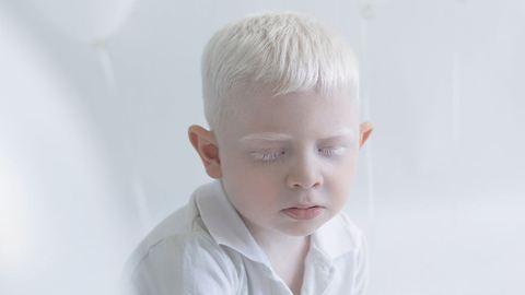 Fotósorozat készült az albínó emberek törékeny szépségéről