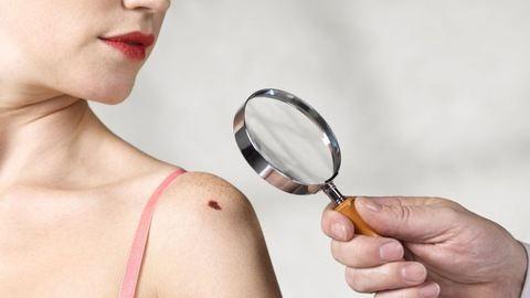 Bortól is nő a melanomakockázat